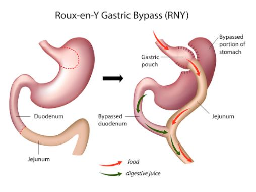 Gastric Bypass operation in turkey